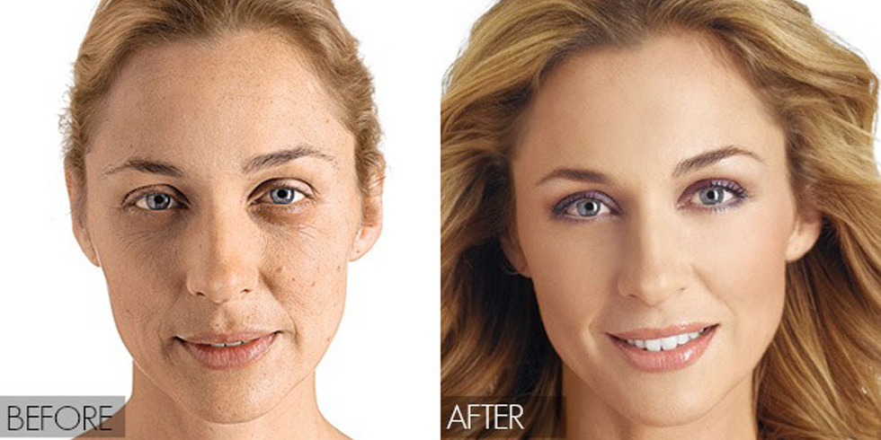 [Image: landscape-1426796167-before-and-after-lady.jpg]