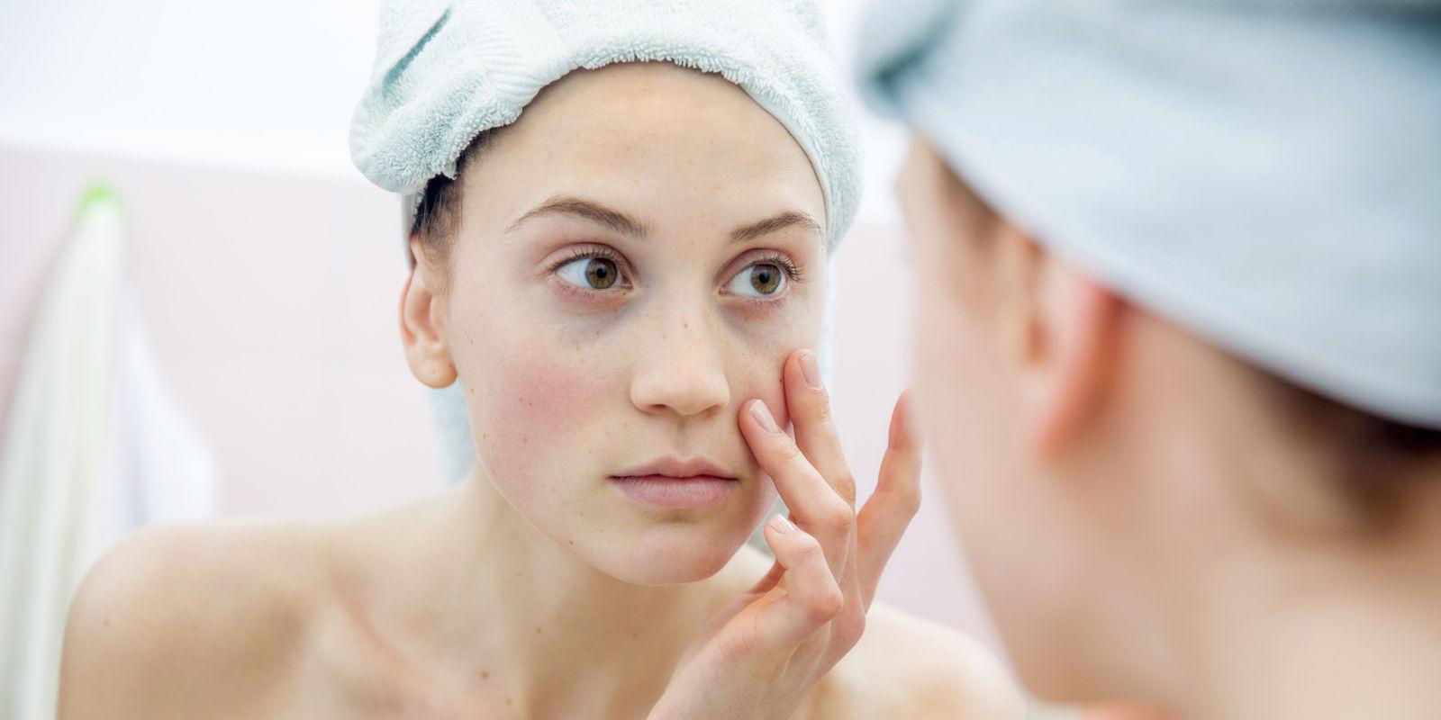 6 Blotchy Skin Causes