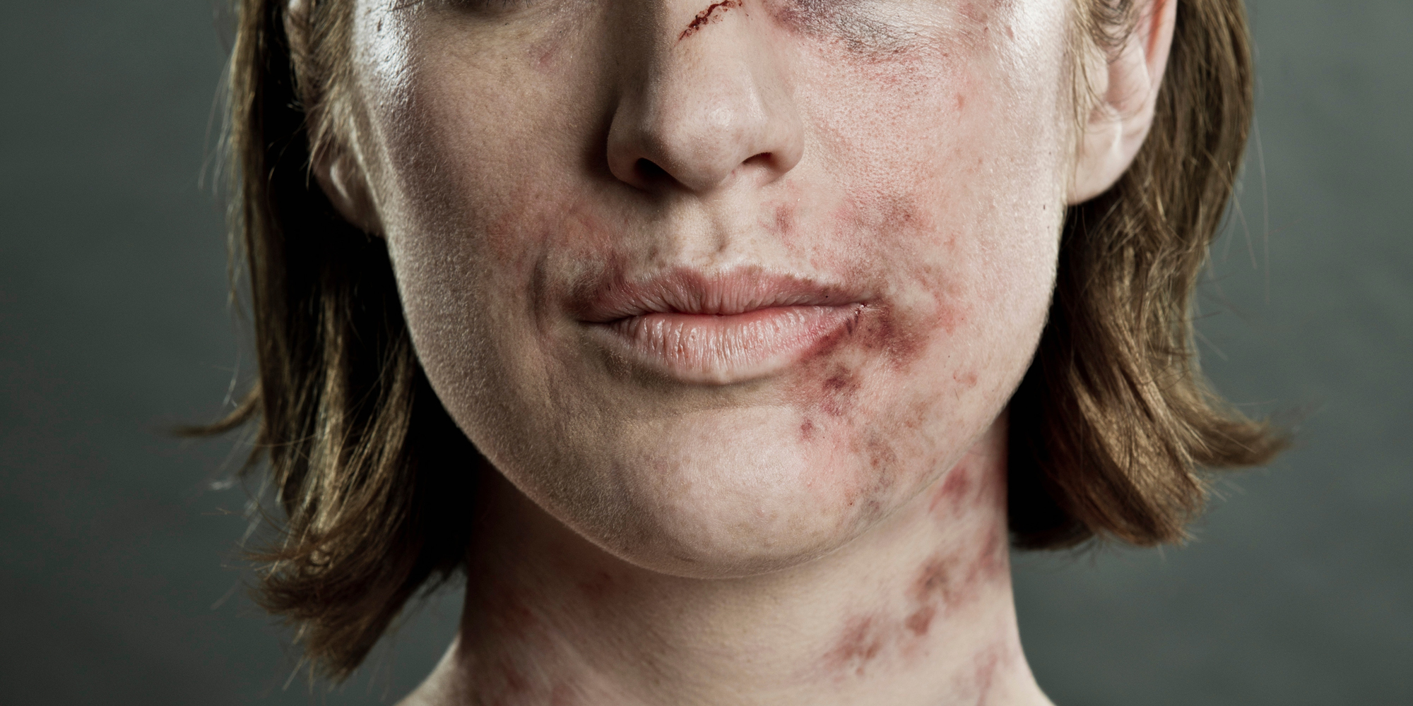 Resources for Victims of Domestic Violence - How to Help ... Battered Women Pictures