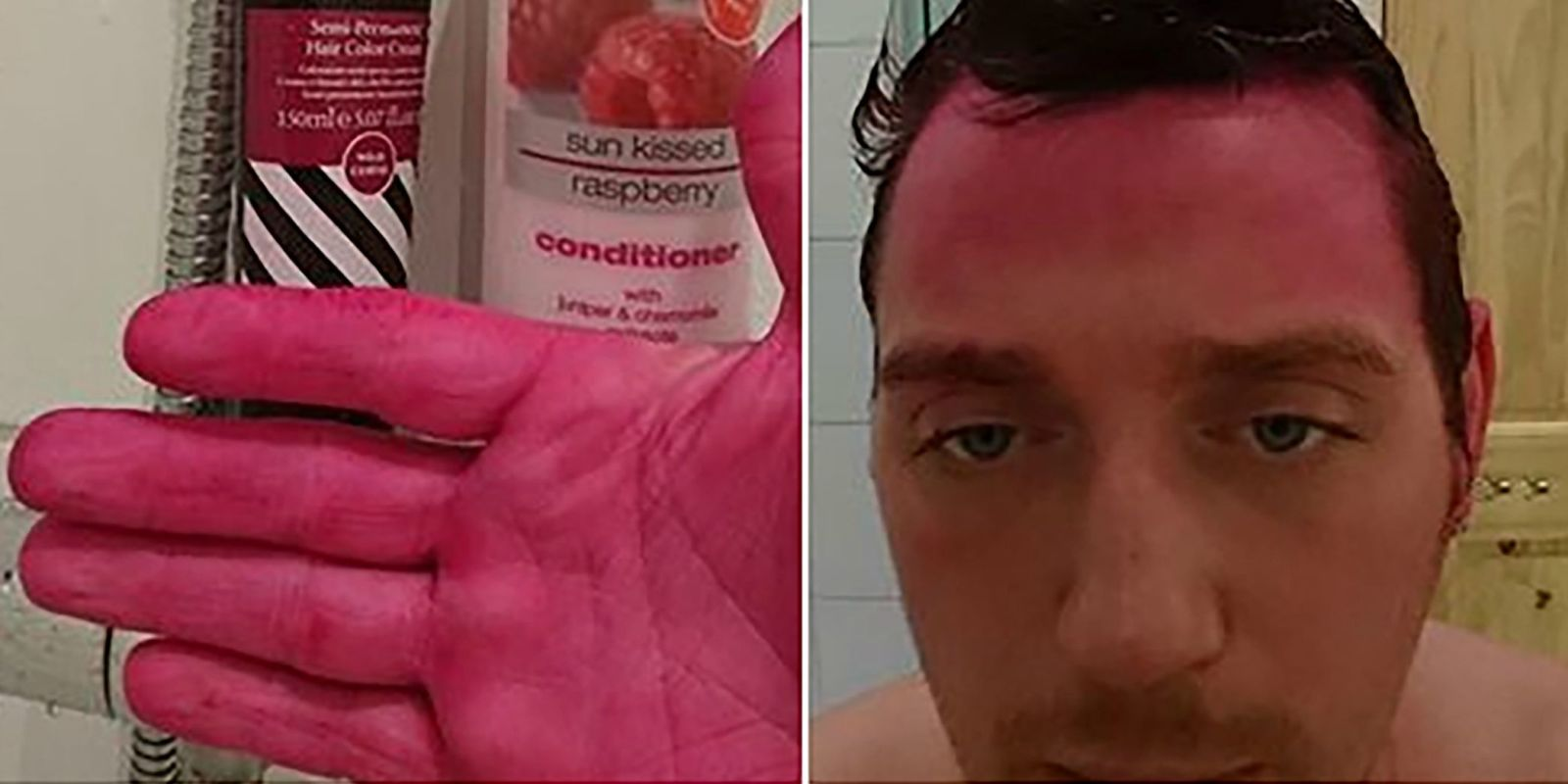 Man Dyes Hair Pink After Mistaking Wife S Dye For Shampoo