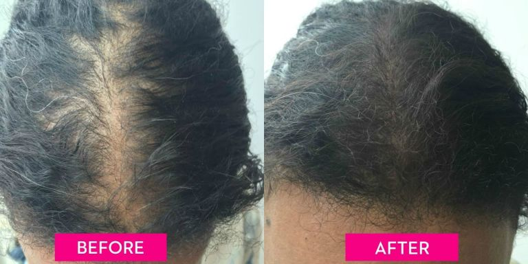 how to make your hair grow longer and thicker overnight