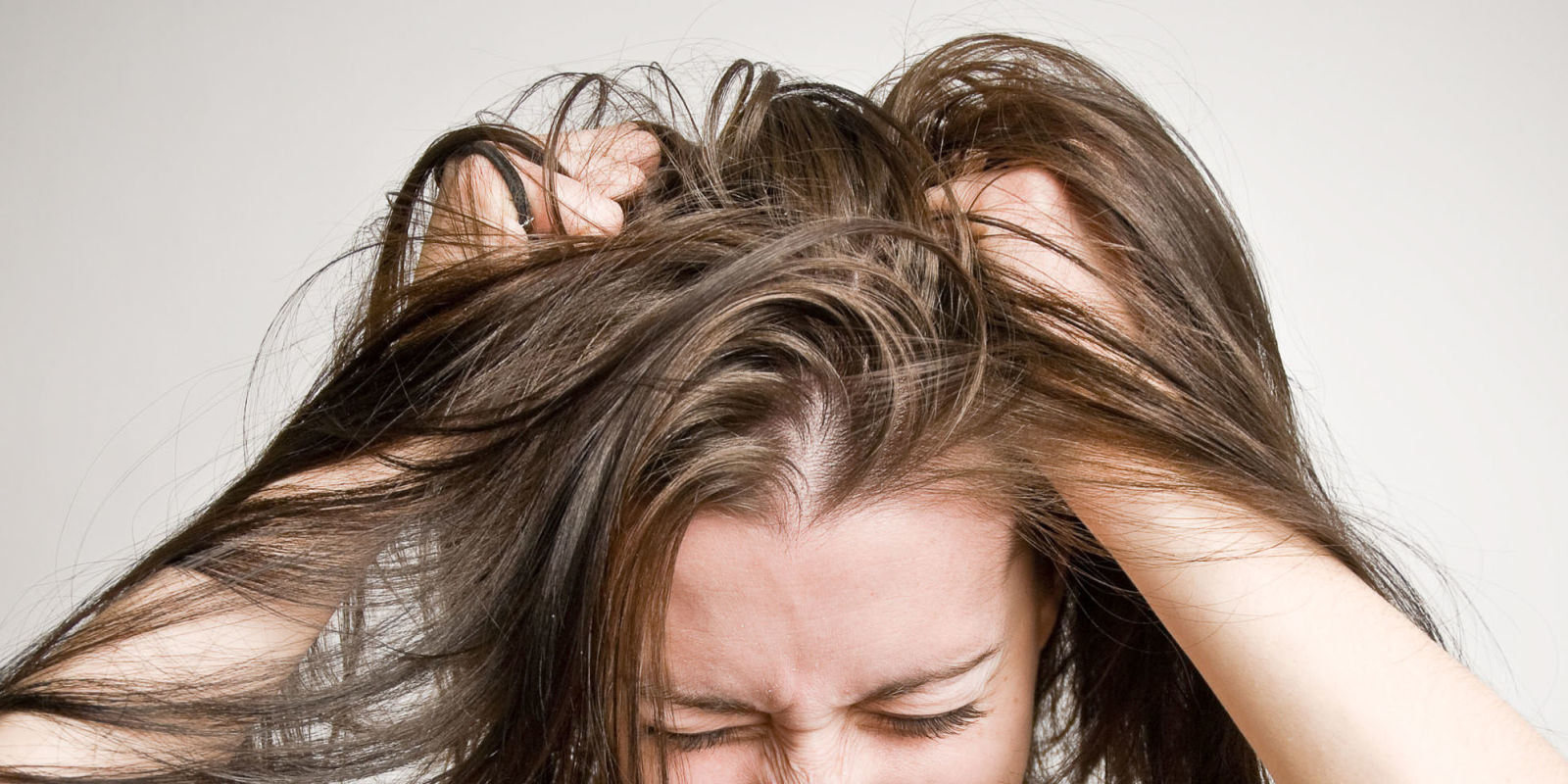 Itchy bald patches on scalp