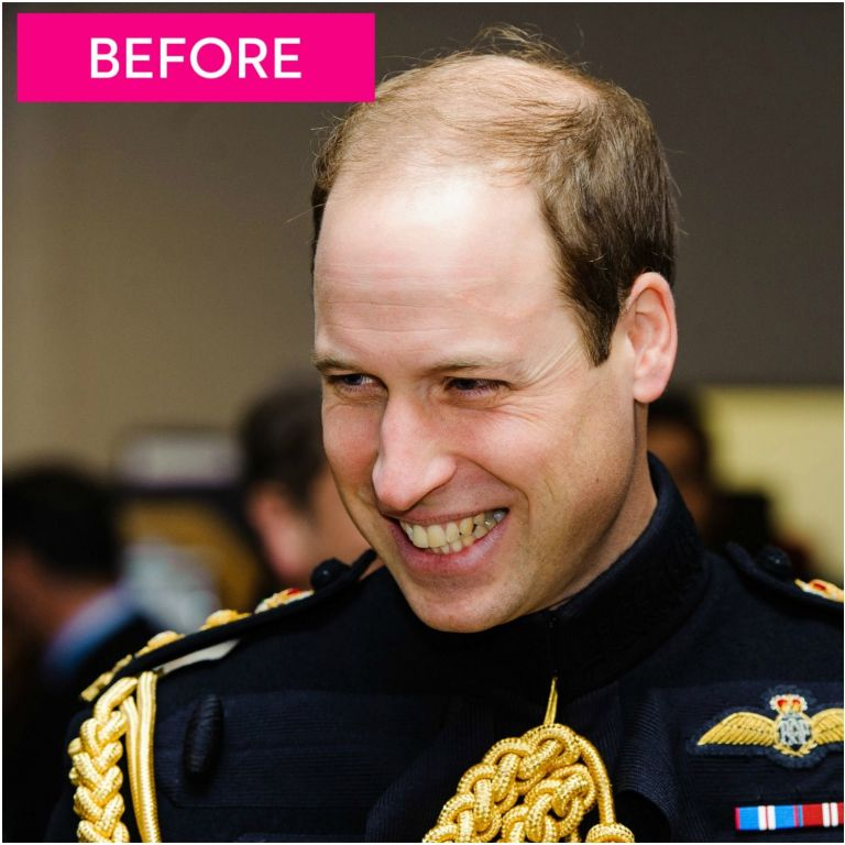 Prince William Gets Super Short Haircut — Prince William's ...