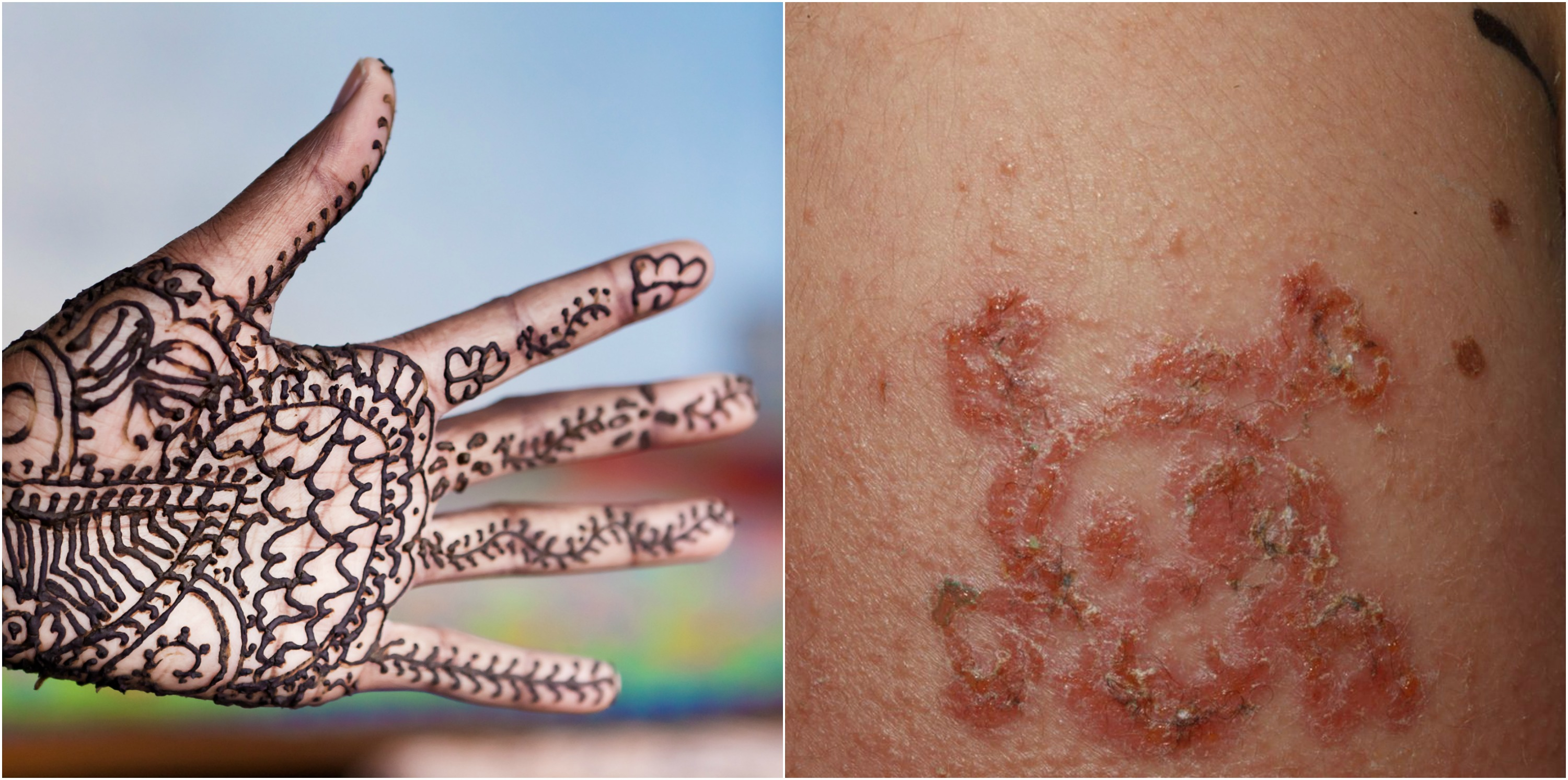 Black Henna: 10-Year-Old Boy Suffers Allergic Reaction To Black Henna
