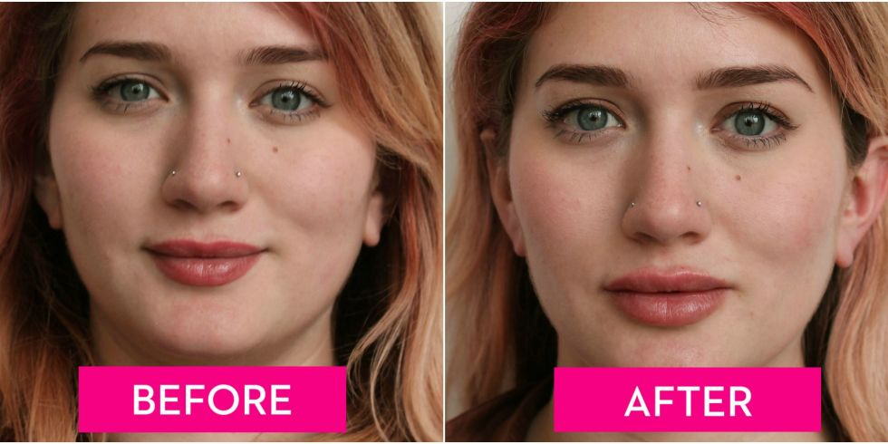 lip plumping injections cost