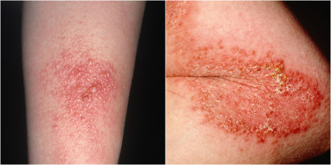 how to get rid of poison ivy rash best poison ivy remedies
