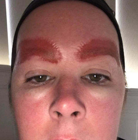 This Is What A Bad Reaction To Microblading Looks Like