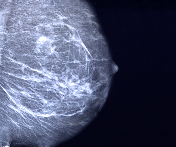 The Breast Cancer Site - Official Site