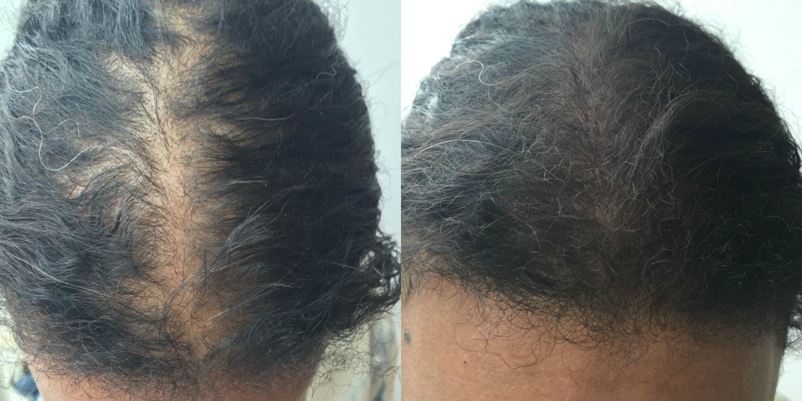 how to make thin hair look thick - eyeshadow on scalp trick