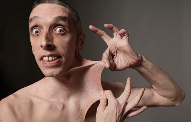 Garry Turner stretchiest skin Guinness World Records